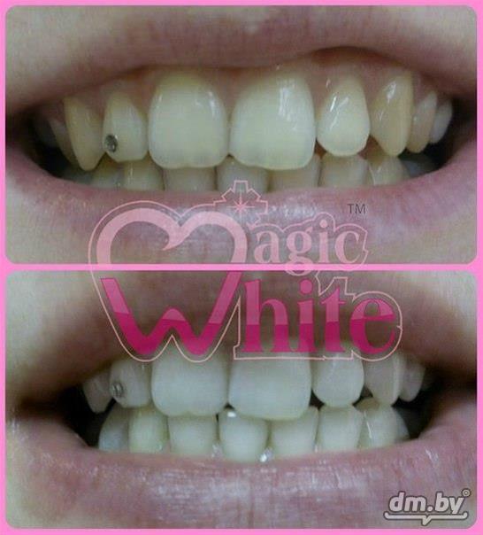 Отбеливание зубов в витебске